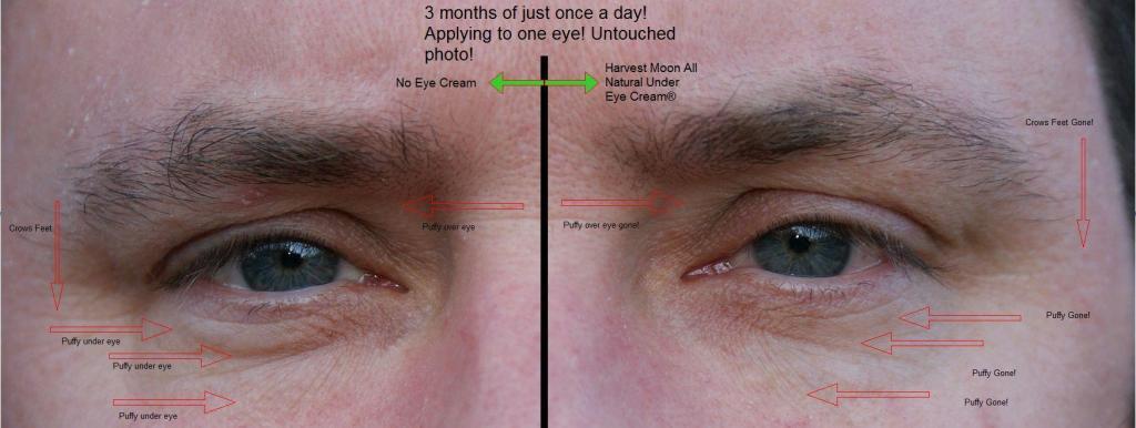 natural under eye cream puffy dark circles chicken bumps